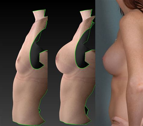 Saline breast implants vs silicone cohesive gel what are jpg 1546x1357