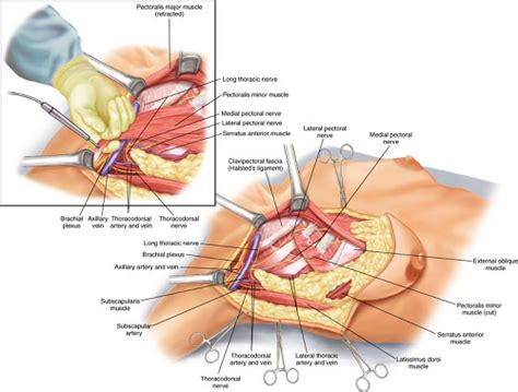 mastectomy bdsm png 500x379